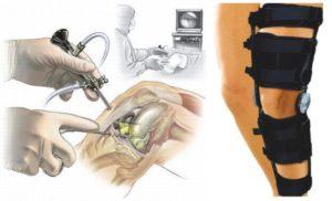 Восстановление после артроскопии