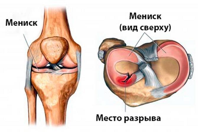 Схематично разрыв мениска коленного сустава