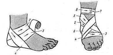 фиксация голеностопного сустава с помощью повязки