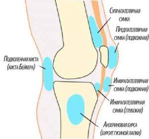 Как вылечить бурсит коленного сустава? Даём полную информацию о данном заболевании