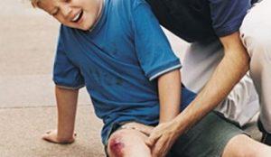 Основные причины ушиба колена