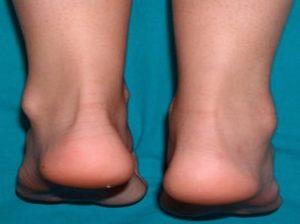 Причины возникновения артрита голеностопа