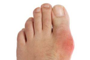 артрит большого пальца ноги
