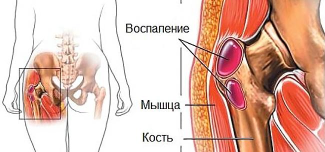 сиптомы бурсита тазобедренного сустава