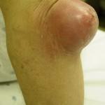 тяжелый бурсит коленного сустава