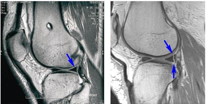 Разрыв заднего рога мениска на рентгеновском снимке