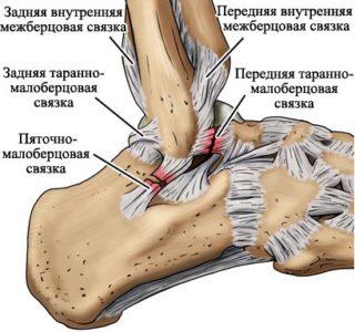Типы связок голеностопного сустава