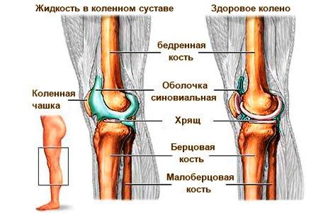 сравнение здорового колена и при синовите коленного сустава