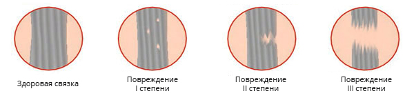 степени разрыва связок