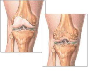Артрит коленного сустава сравнение