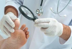 Диагностика микоза стоп