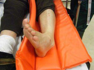 Первая помощь при переломе лодыжки