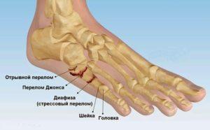 Переломы плюсневых костей