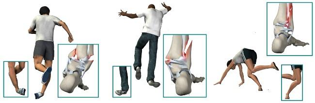 Причины перелома лодыжки