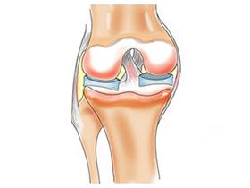 Растяжение связок в колене