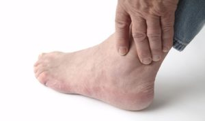 артрит голеностопного сустава симптомы
