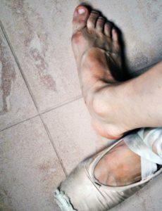 боль в голеностопе танцора