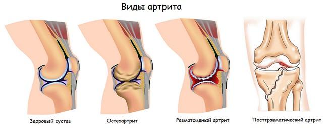 Виды и формы артрита коленного сустава