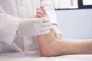 диагностика артрита пальцев ног