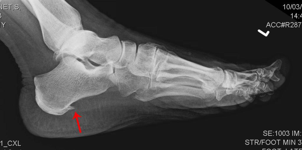 пяточная шпора рентген