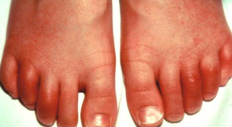 фото артрита на пальцах ног