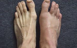 фото подагрического артрита
