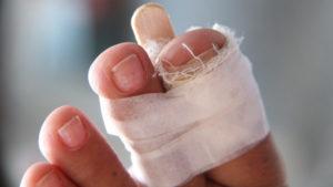 Помощь при переломе пальцев ног