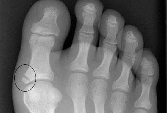 Диагностика перелома - снимок