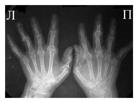 Рентгенологические снимки