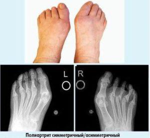 Cимметричный артрит